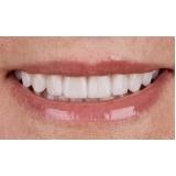 lente de contato dental Jardim Duprat