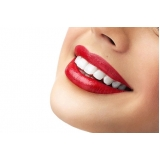 lente de contato para dentes preço Vila Analia