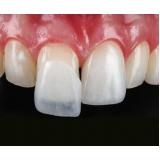 lente de contato para os dentes Jardim Itamarati