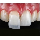 lente de contato para os dentes Jardim Tereza Rosa