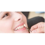 lente dental Umarizal