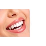 lentes de contato dental Vila Brasil