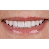 lentes de contato dentes Vila Olga