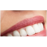 lente de contato para dentes tortos