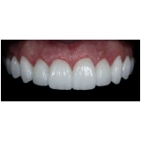 Lente Dental de Porcelana
