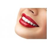 Lentes de Contato Dentes