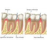 onde encontrar dentista especialista em periodontia em Previdência