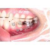 onde encontrar dentista periodontista na Vila Brasil