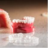 onde encontro aparelho dentário invisível Jardim Umuarama