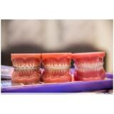 onde encontro aparelho transparente dentário Jardim Paris