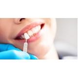 onde encontro clínica para lentes de contato dental Cidade Bandeirantes