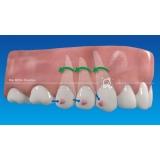 onde encontro invisalign dentista Embu-Mirim