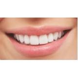 onde encontro lente de contato dental Vila Cercado Grande
