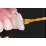 onde encontro lente de contato para os dentes Jardim Tereza Rosa