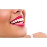 onde encontro lentes de contato dental Jardim Samara