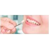 quanto custa lente de contato dental Jardim Itamarati