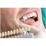 quanto custa lente de contato para dentes tortos Cidade Bandeirantes
