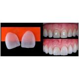 quanto custa lente de contato para os dentes Conjunto Residencial Morumbi