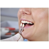 quanto custa lente dental Inocoop