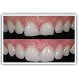 quanto custa tratamentos dentários no Jardim Ademar