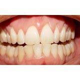 tratamento de gengiva (periodontia) em Rolinópolis
