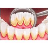 cirurgia periodontal