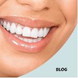 tratamento dentário com anestesia geral na Cidade Universitária