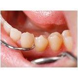 valor consulta dentista na Vila Praia