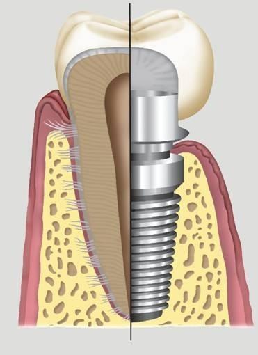 Valor de Implante Dentário Completo no Jardim Umuarama - Clínica de Implante Dentário